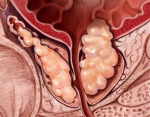 Cancer de prostata avanzado, Cancer de prostata resumen