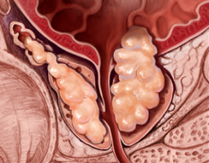 Cáncer de próstata avanzado