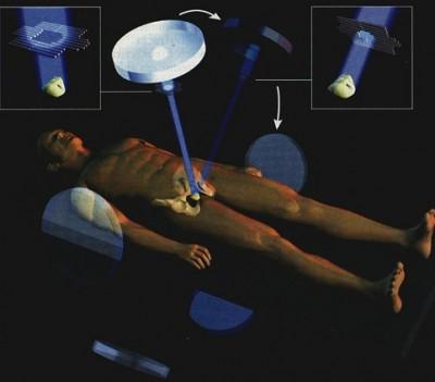 Radioterapia de Cáncer de próstata