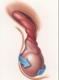 Secrecin del pene: Sntomas-Causas-Tratamiento