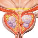Cáncer urológico