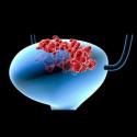 Cáncer urológico - Cáncer de vejiga, vesical, urotelio, urotelial