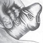 Enfermedades venereas - enfermedades de transmisión sexual - ETS
